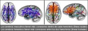 cerebro_art4